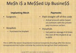 mesh details